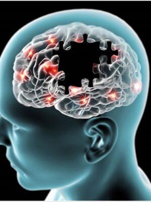 آلزایمر | جوشونده