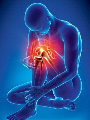 پک آرتریت | جوشونده