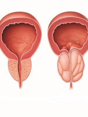 سرطان پروستات   جوشونده