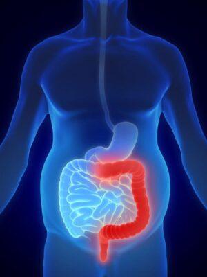 سندروم روده تحریک پذیر و کولیت