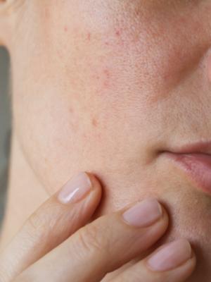 درمان گیاهی خشکی پوست | جوشونده